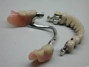 Виды-зубных-протезов-Уход-за-зубными-протезами-5