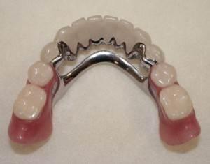 Виды-зубных-протезов-Уход-за-зубными-протезами-1