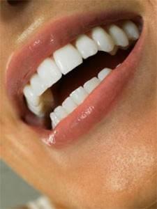 Как-сохранить-естественные-зубы-2