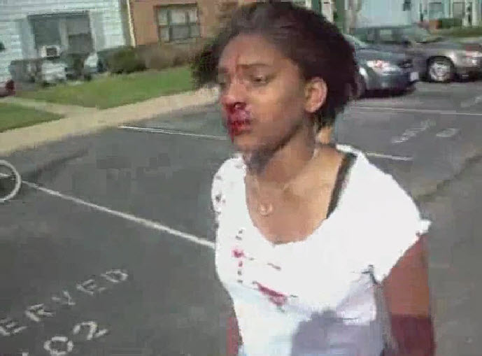 Terribad Girls Face Leaks After Vicious Fight Female Runs Off After Doing Damage  Video