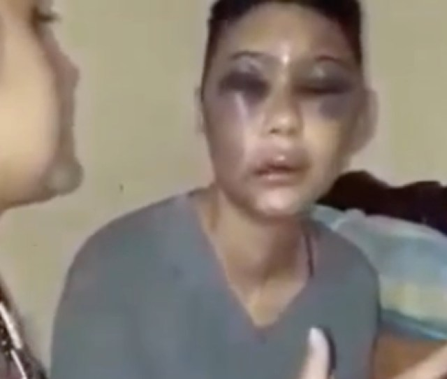 Terrible Police Come To The House After A Man Brutally Beat His Girlfriend Video