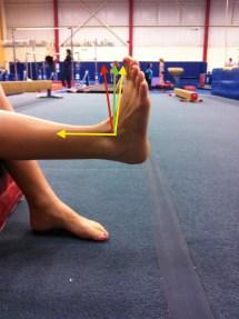 Dorsiflexion Ankle Injury