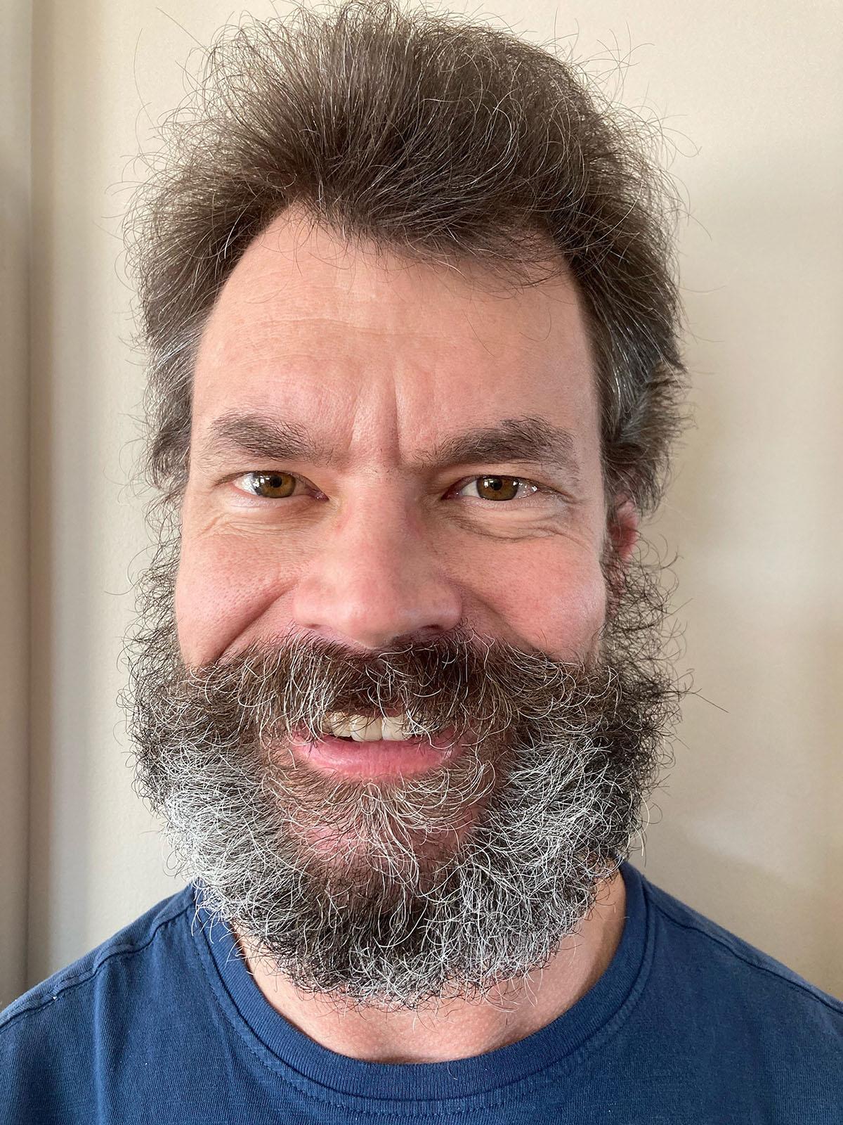 Faire Pousser Sa Barbe : faire, pousser, barbe, L'homme, Pouvait, Faire, Pousser, Barbe, S'est, Laissé, Tirer, Cheveux