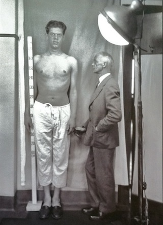 Harvey Cushing posing with a patient with acromegaly (Cushing Center, via Yale Journal of Biology and Medicine)