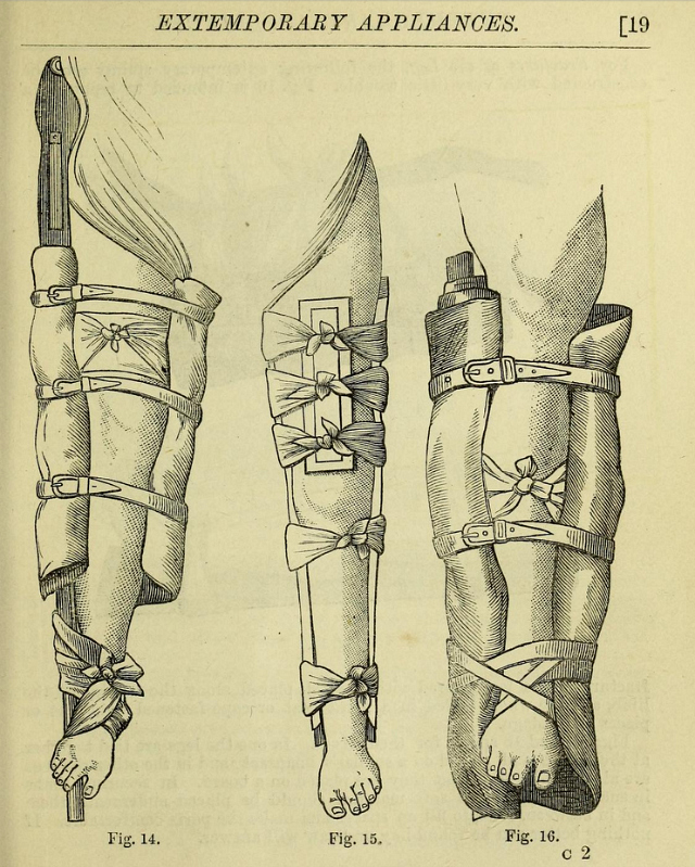 """Illustration from """"The surgeon's pocket-book: Being an essay on the best treatment of wounded in war"""" by J. H. Porter (1875)"""