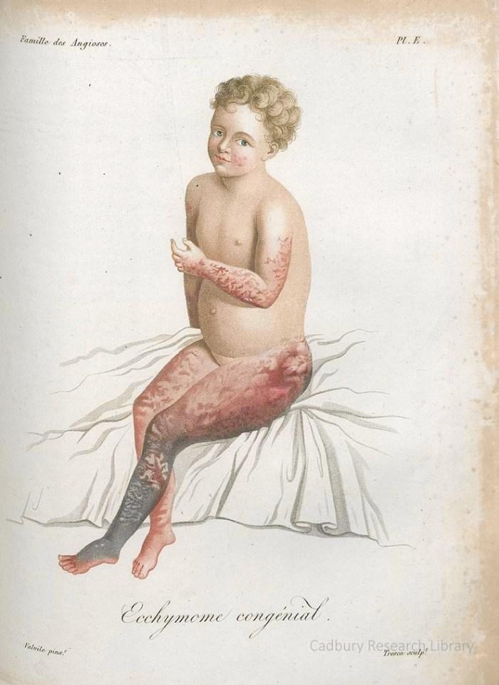 Ecchymome congenial, from Jean-Louis Alibert's 'Nosologie Naturelle' (1806)