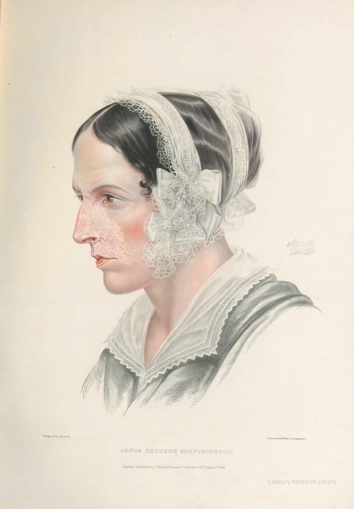 Lupus, Portraits of Diseases of the Skin, Sir Erasmus Wilson Cadbury Research Library