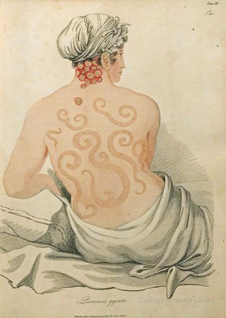 Psoriosis gyrata, Delineations of Cutaneous Diseases, Bateman 1828 Cadbury Research Library