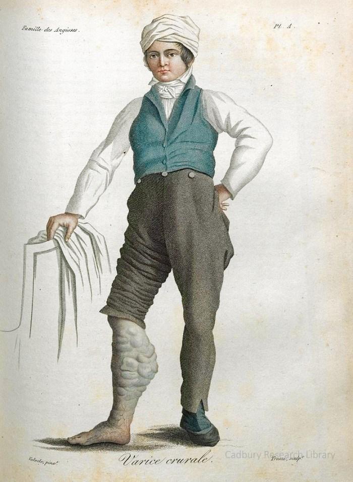 Varice crurale, Nosologie Naturelle, Jean-Louis Alibert, 1806 Cadbury Research Library