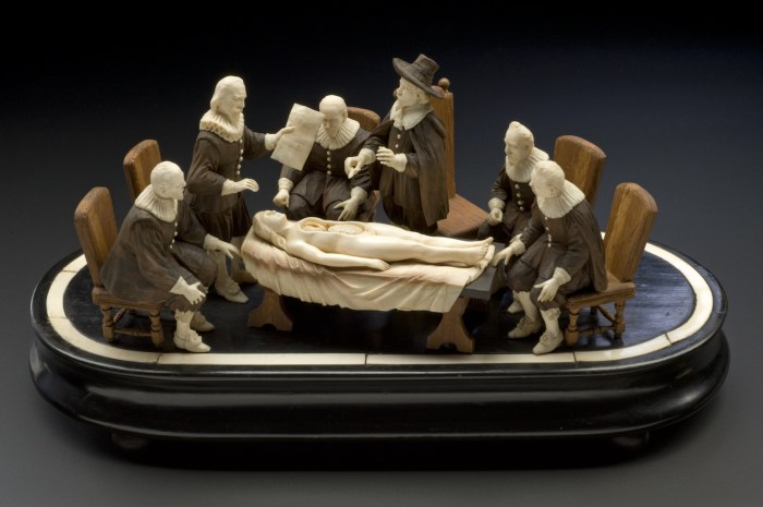"""L0057499 Wood and ivory figure group representing an anatomical demon Credit: Science Museum, London. Wellcome Images images@wellcome.ac.uk http://wellcomeimages.org Wood and ivory figure group representing an anatomical demonstration by Nicholis Tulp, based on Rembrandt's painting """"The Anatomy Lesson"""". Full view, graduated matt black perspex background. Published: - Copyrighted work available under Creative Commons Attribution only licence CC BY 4.0 http://creativecommons.org/licenses/by/4.0/"""