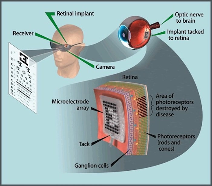 A high-level diagram of how a retina implant works.