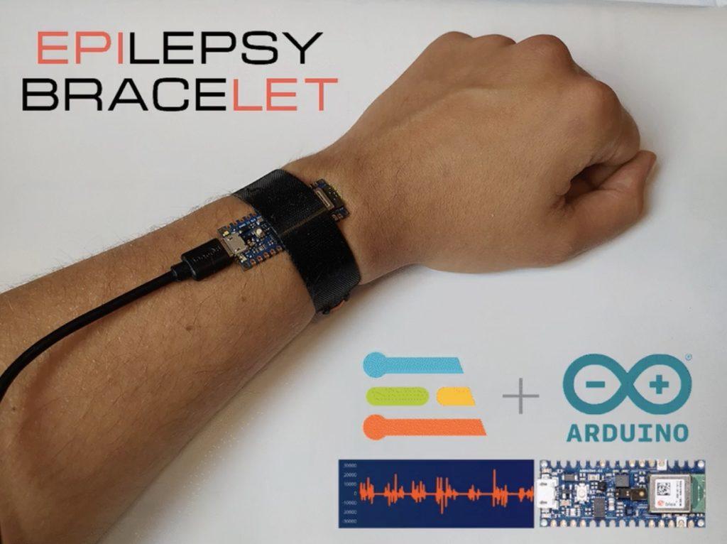 epilet is a tinyml powered bracelet for detecting epileptic seizures hyperedge embed
