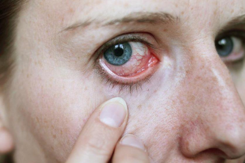 parasita olho lente de contato