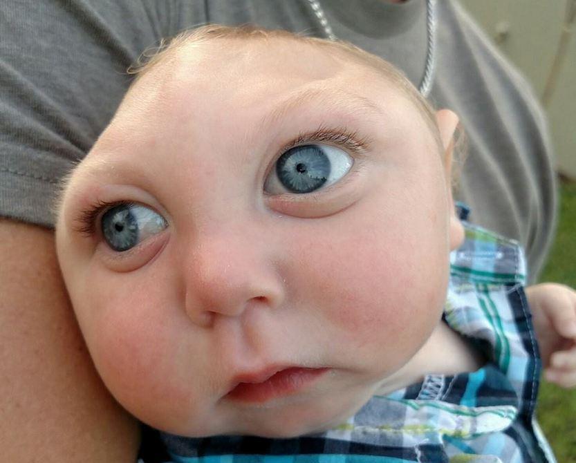 bebe sem parte do cranio