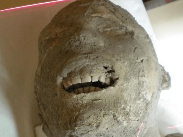 Antigos romanos de Pompéia tinham dentes perfeitos 4