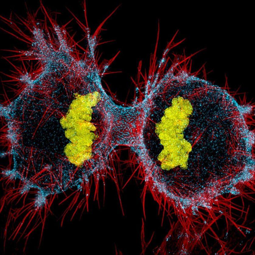 foto-microscopica-celula-humana-hela
