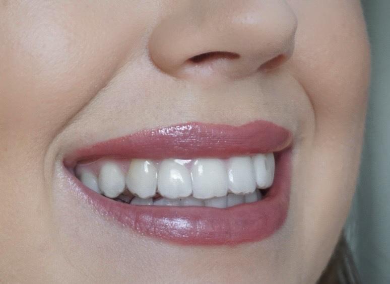 Vorher-Bild: Vor der DrSmile Behandlung mit unsichtbarer Zahnschiene