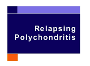 relapsing polychondritis treatments