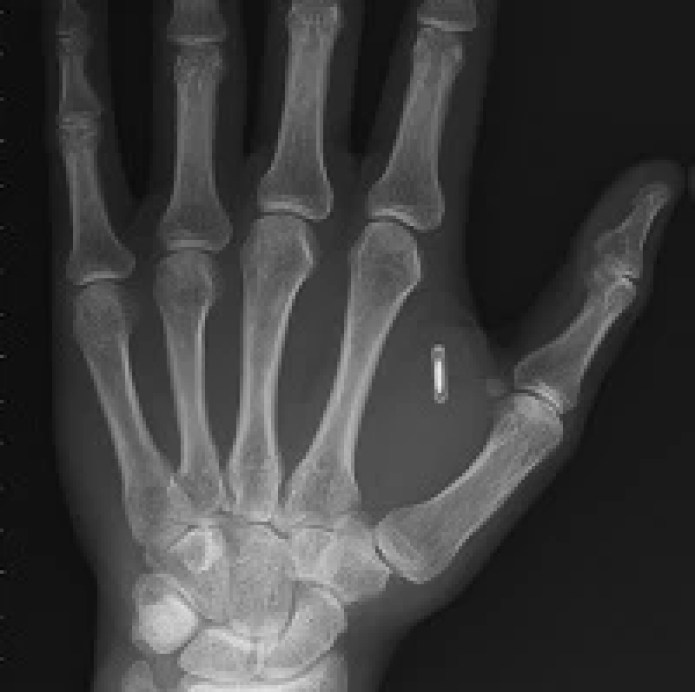 "Taking ""being connected"" to the next level: Man implants NFC chip ..."