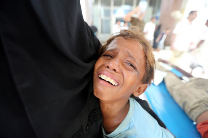 © Reuters. FILE PHOTO: Boy cries after his brother was injured in strike near al-Thawra Hospital in Hodeidah