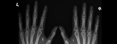 Estos son los grupos que quieren llevar los implantes electrónicos al gran público