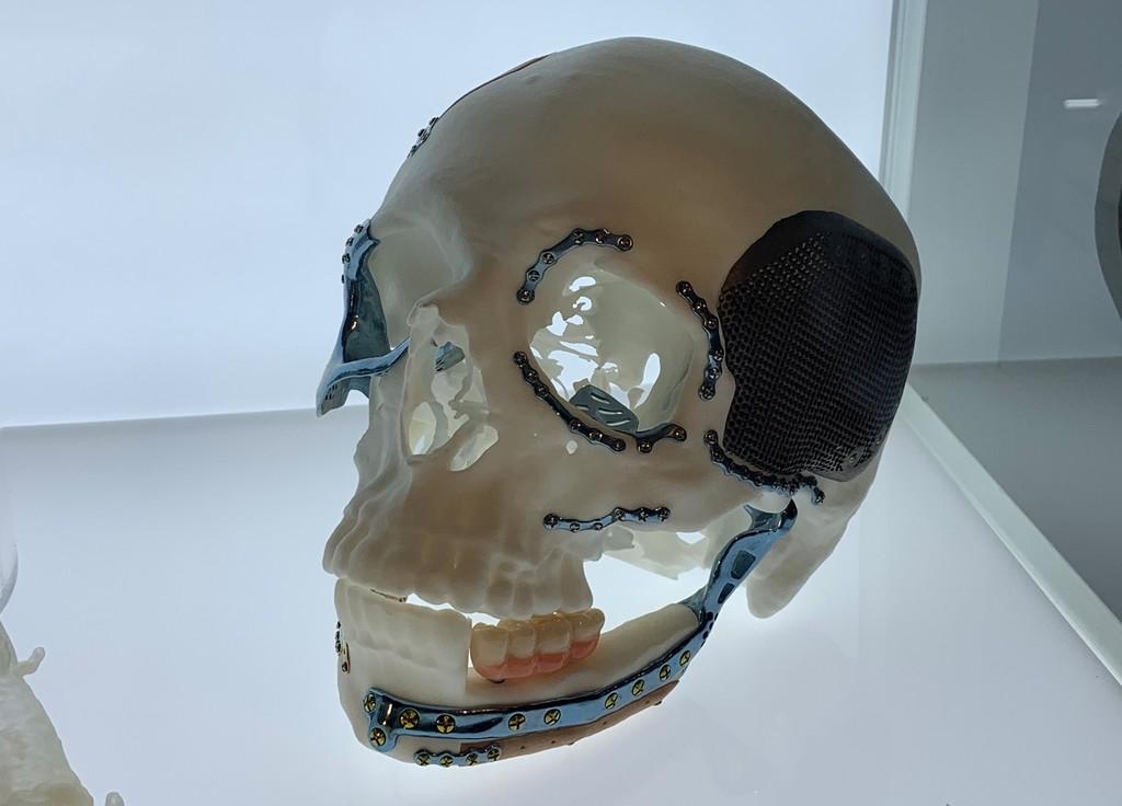 Permalink to Órganos de plástico, prototipos y prótesis: para qué se está usando hoy la impresión 3D
