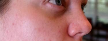 Motivos por los que aparece el acné