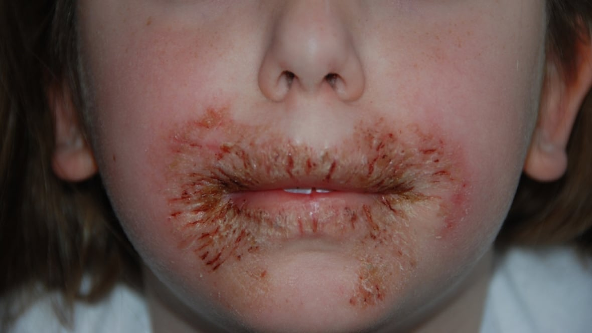Baby Wipe Preservative Can Cause Allergic Rash, Doctors