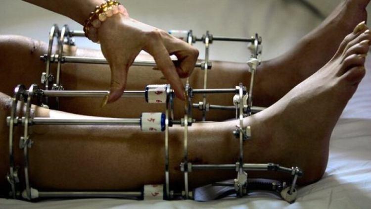 Image result for leg lengthening surgery
