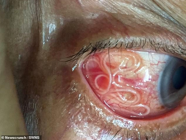 The unnamed patient, from India, complained of both pain and itching in his eyes and decided to seek medical help (pictured: the worm in the man's eye)