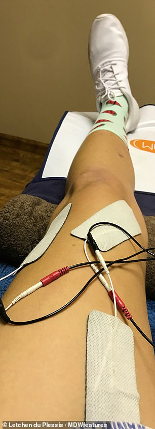The leg of Miss du Plessis is being monitored in the hospital
