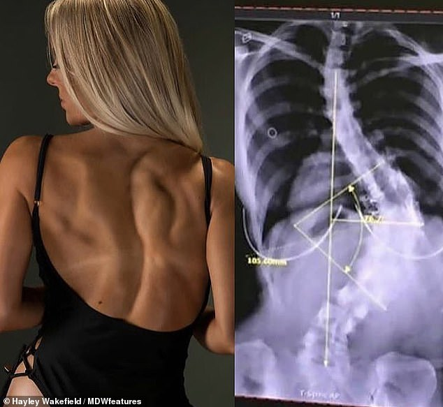Hayley Wakefield refuses the operation to correct the 80-degree curve in the spine, although the doctors have warned that he could kill her. She was diagnosed with scoliosis at age nine when her parents noticed her hips were uneven. Their condition can be seen on the left and right in an x-ray