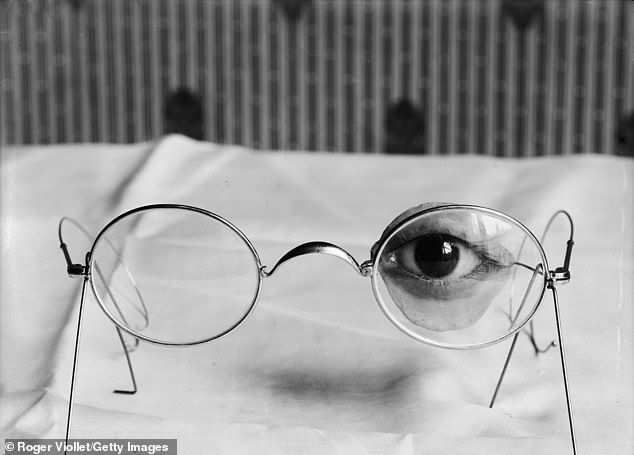 This is a close-up of an eye and eyelid prosthesis attached to the glasses to keep them fixed