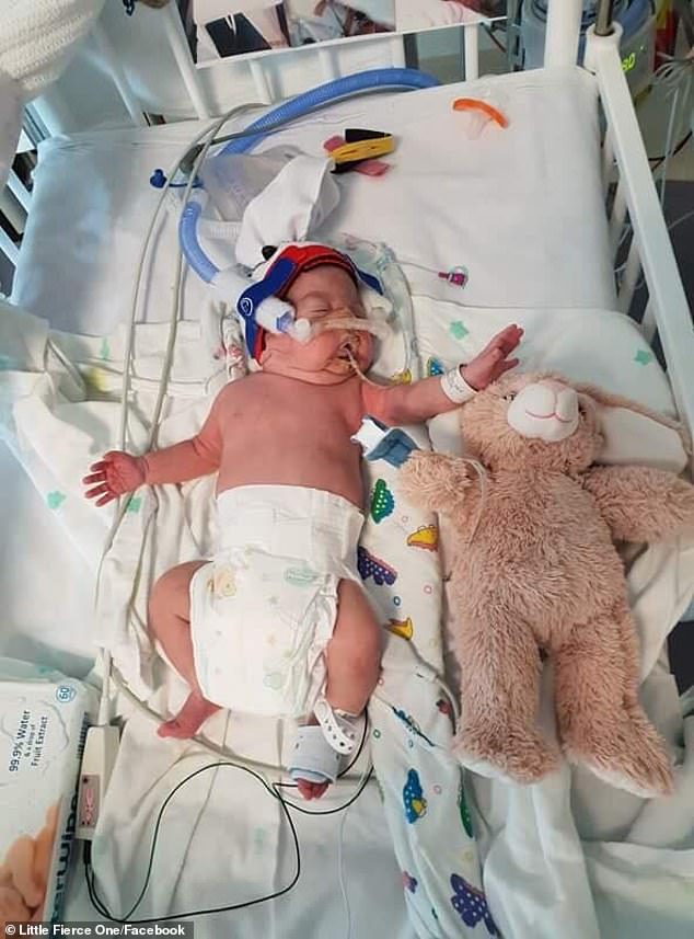 Describing him as a miracle baby, Lorcan spent every day in the Neonatal Intensive Care Unit, as he suffered through his respiratory problems