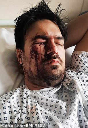 Afaq Iftikhar, 32, was left with life-changing injuries after allegedly being set upon by the woman and her friends after asking them to leave his cab near the Bullring in Birmingham. He is pictured in undated photos taken in hospital
