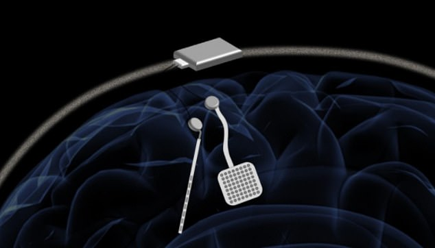 The WAND (pictured), developed by engineers at the University of California, Berkeley, is wireless and autonomous. It can stimulate and record simultaneously - meaning it can adjust itself in real-time