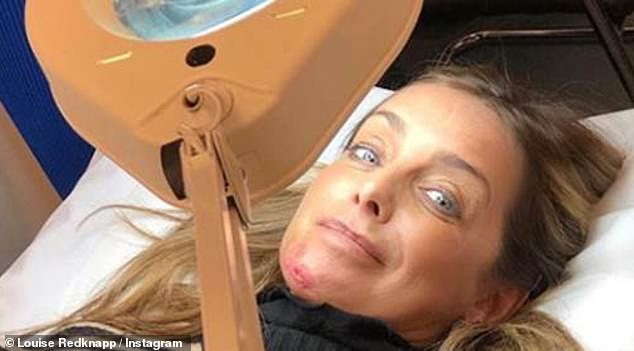 Ouch: Louise Redknapp has shared a snap of of her bloodied face after she was rushed to hospital on Tuesday morning, after falling in the street on her way to rehearsals for upcoming West End show 9 To 5