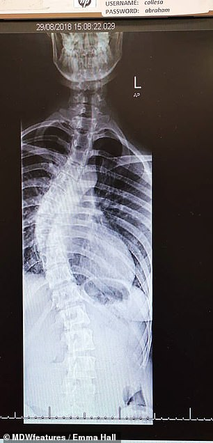 Ms. Hall was told she had a 15-degree curvature in her spine when she was 13. This reached 60 degrees by the time she had surgery. Left, before, right, after straightening