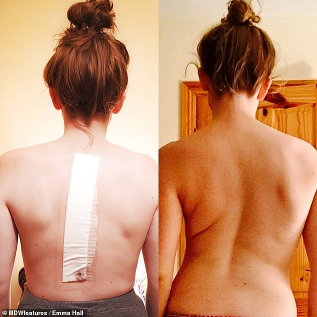 Emma Hall, 22, had surgery to correct her 'wonky' spine seven years after she was put on the waiting list age 15. Pictured, before, right, and after, left