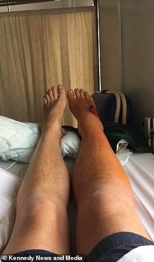 The image shows the inflated leg and foot