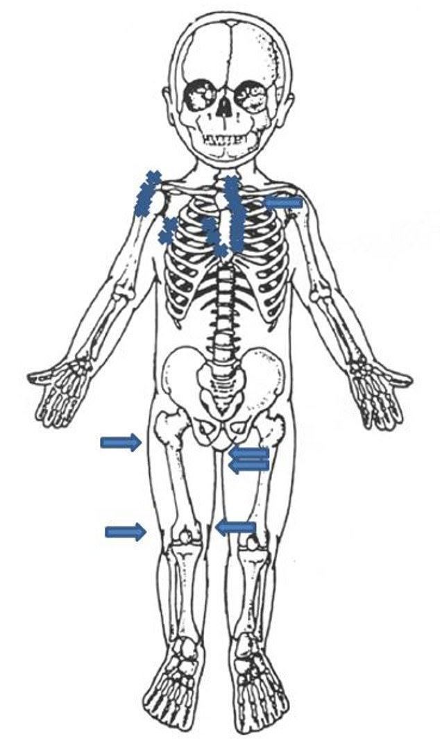 A body map shown to the court itemised the horrifying number of injuries to the tiny child