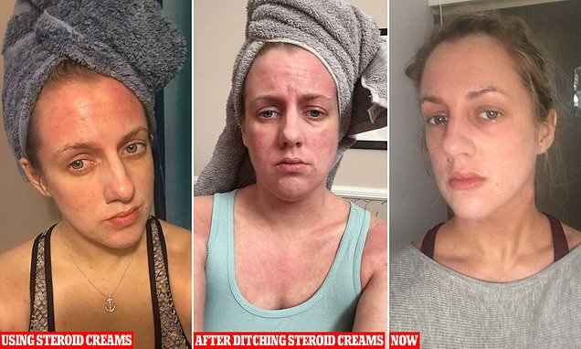 Woman 32 releases graphic photo diary showing 'red raw ...