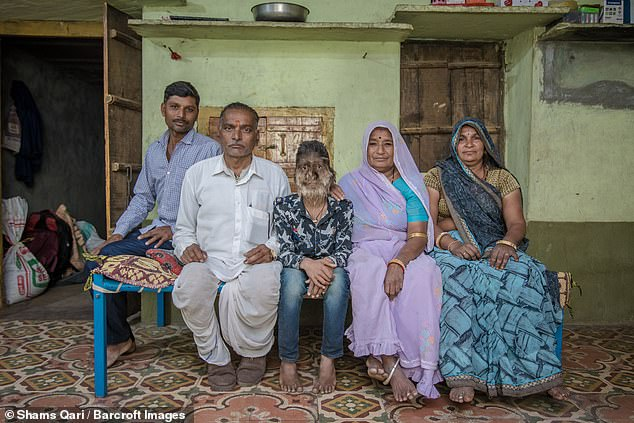 Lalit's parents, Parvatibai and Bankatlal, say doctors told them there is no cure for their son's disorder and added they were 'amazed' to see he was covered in 'extraordinary' amounts of hair when he was born