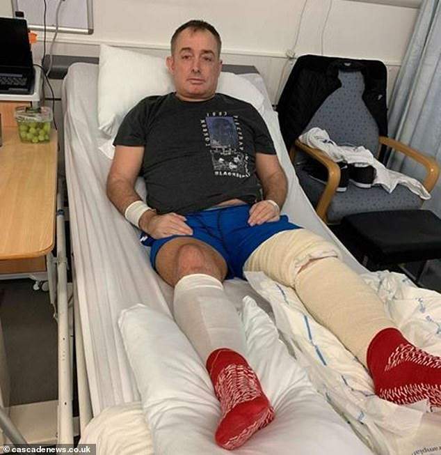James Nicol, 43, has been in the hospital for 10 days after being mowed down by his friend's Staffordshire bull terriers in an apartment in Aberdeen.
