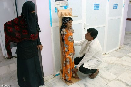 A nurse measures the height of the malnourished 12-year-old at a clinic in Aslam of the northwestern province of Hajjah, Yemen