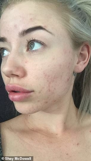 The 25-year-old said she believed her severe adult acne was a result of 'breast implant illness'
