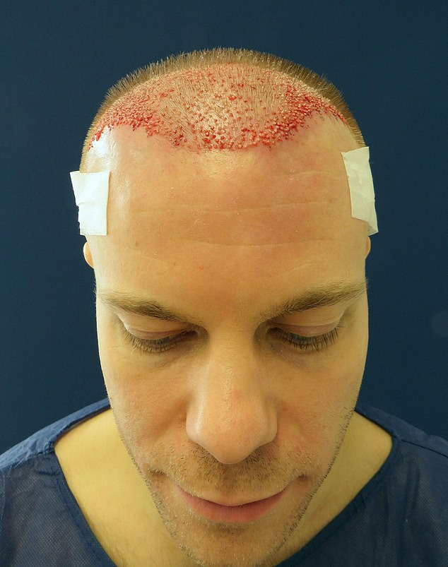 As well as having the new hairs implanted, King will also be taking hair-loss tablets
