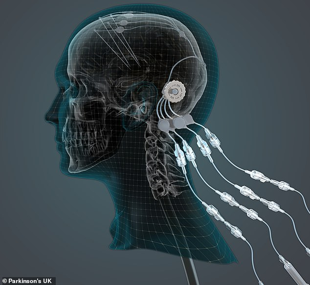 The device - convection enhanced delivery implants - allows doctors to inject drugs through a port in the side of the head, down a tube directly into the key part of the brain, bypassing the blood-brain barrier, which usually keeps drugs out. An illustration of the method is pictured