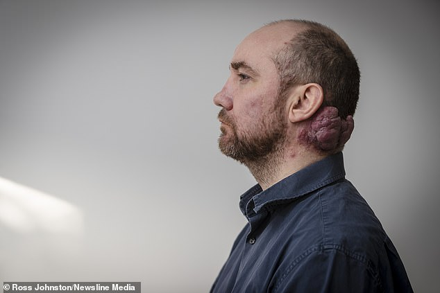 Due to a mix-up with funding, Mr Wright, whose growth is now the size of a grapefruit, wasn't seen by the plastic surgeon until 2015, two years after his initial GP appointment