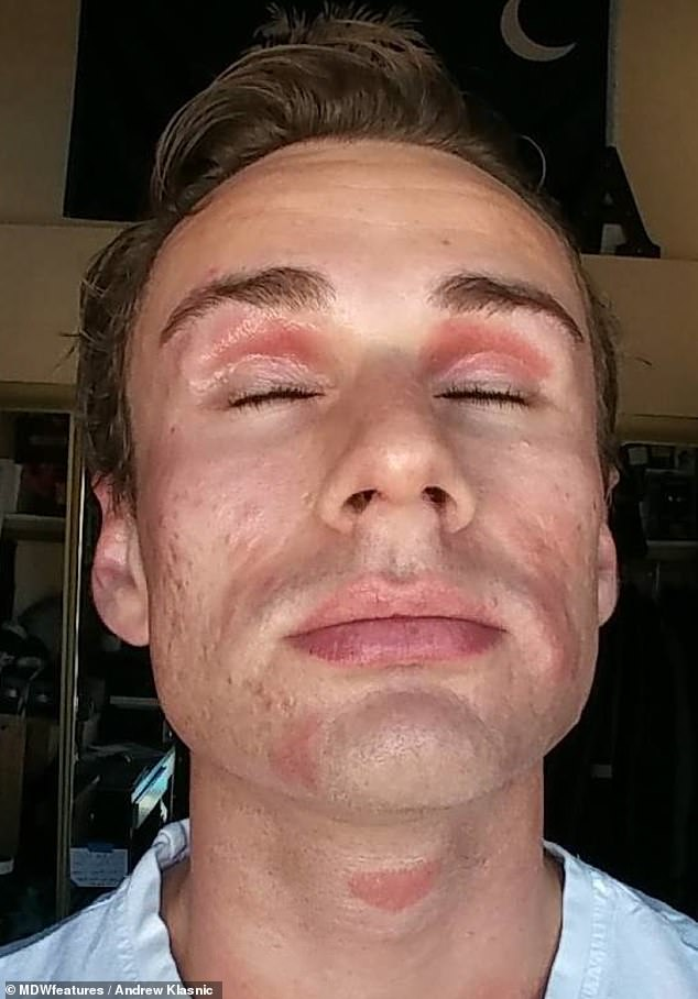 Tough: In 2017, when Andrew was about 24-years-old, his skin was at its worst, as he had both eczema and psoriasis on his face, and he knew he needed to make a lifestyle change